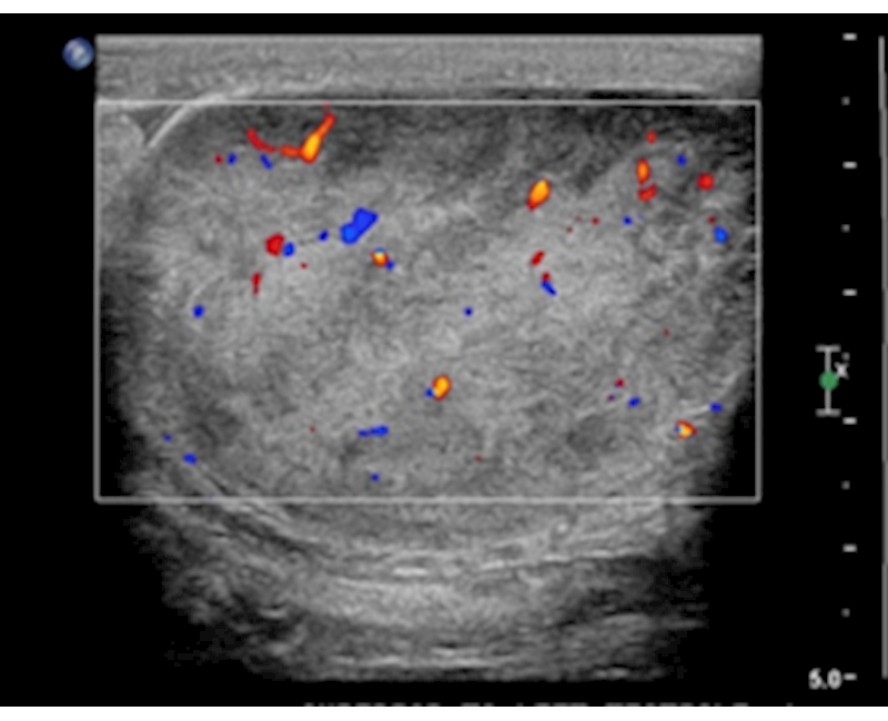 Scrotal liposarcoma: Sonography case report of a rare extratesticular mass