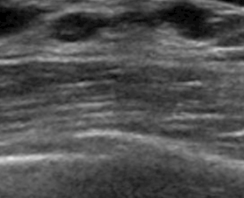 Artificial Intelligence boosts screening breast ultrasound